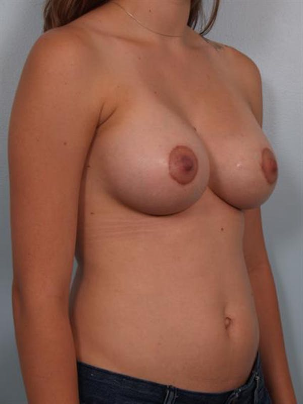 Breast Lift with Implants Gallery - Patient 1612647 - Image 4