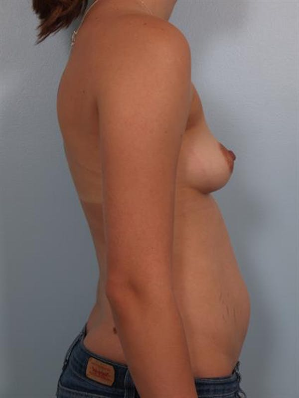 Breast Lift with Implants Gallery - Patient 1612647 - Image 5