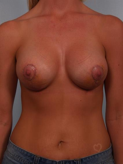 Breast Lift with Implants Gallery - Patient 1612648 - Image 2
