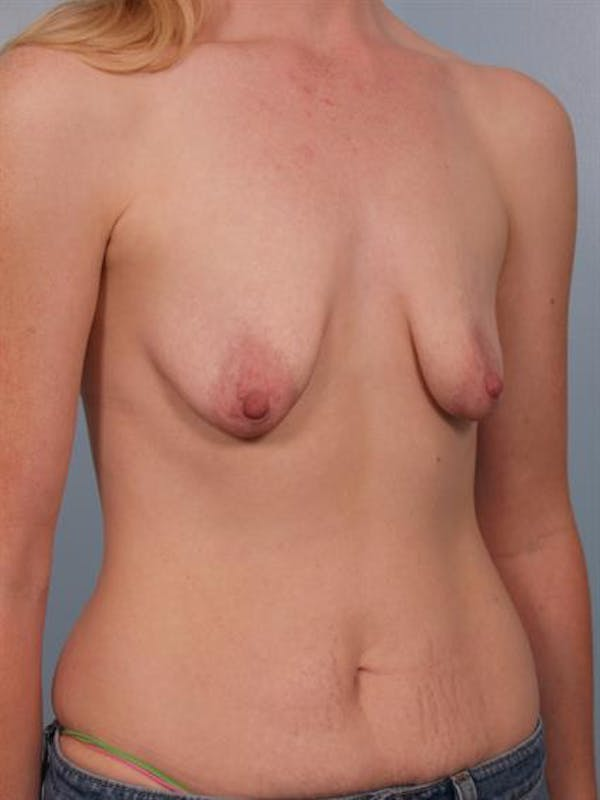 Breast Lift with Implants Gallery - Patient 1612648 - Image 5