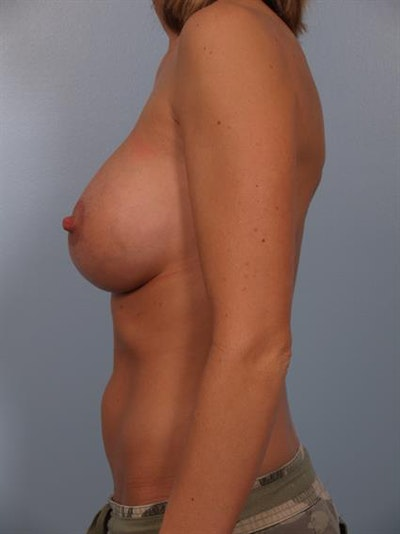 Breast Lift with Implants Gallery - Patient 1612649 - Image 2
