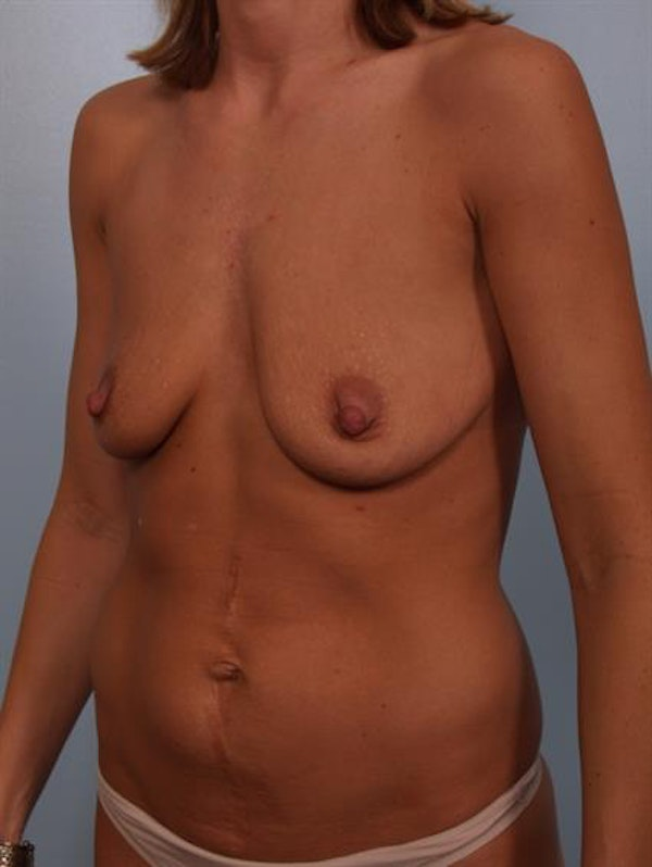 Breast Lift with Implants Gallery - Patient 1612649 - Image 3