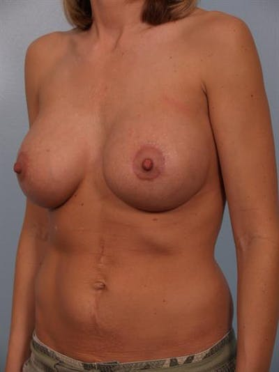Breast Lift with Implants Gallery - Patient 1612649 - Image 4