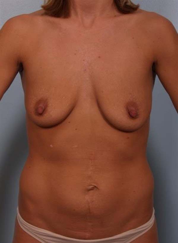 Breast Lift with Implants Gallery - Patient 1612649 - Image 5