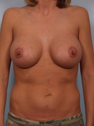 Breast Lift with Implants Gallery - Patient 1612649 - Image 6