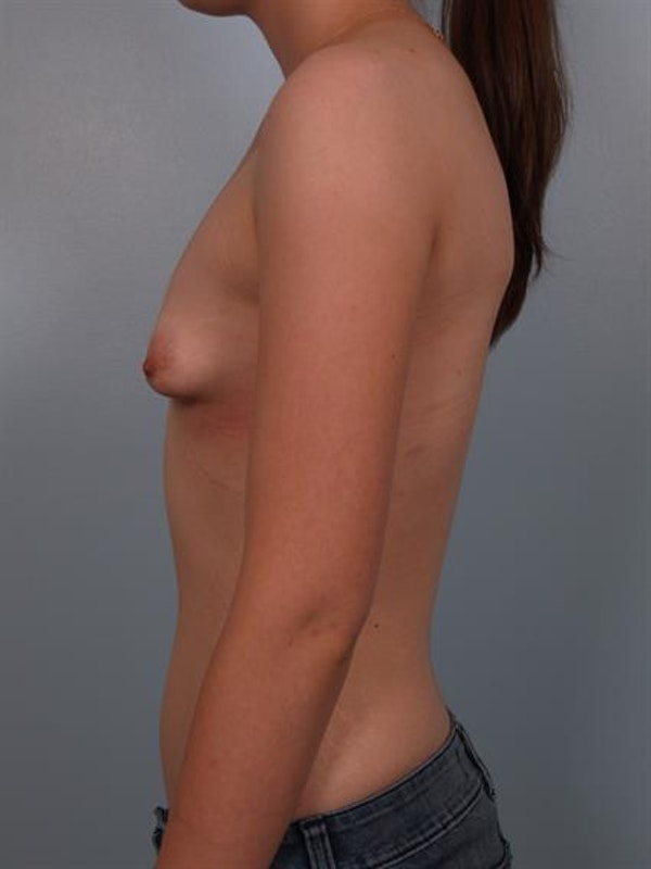 Breast Lift with Implants Gallery - Patient 1612652 - Image 3