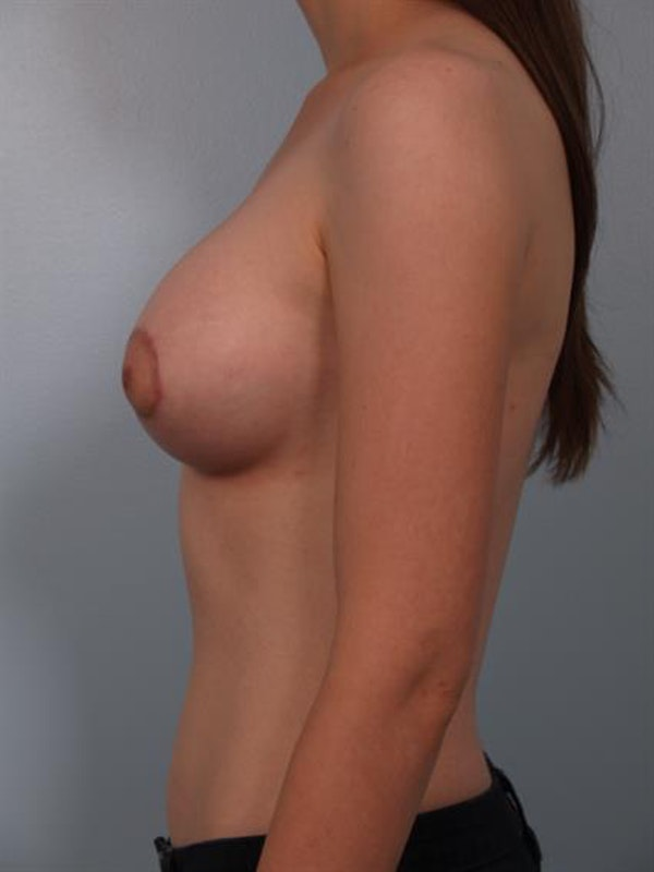 Breast Lift with Implants Gallery - Patient 1612652 - Image 4
