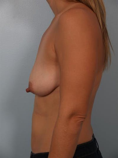 Breast Lift with Implants Gallery - Patient 1612653 - Image 1