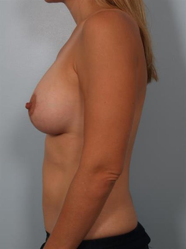 Breast Lift with Implants Gallery - Patient 1612653 - Image 2