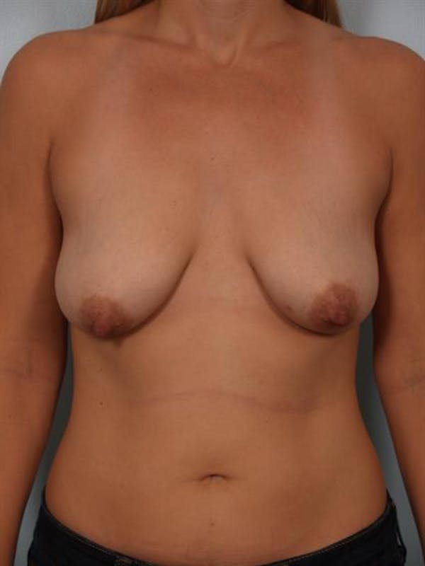 Breast Lift with Implants Gallery - Patient 1612653 - Image 3