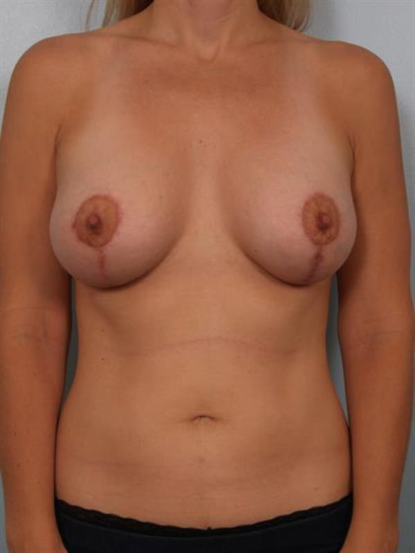 Breast Lift with Implants Gallery - Patient 1612653 - Image 4