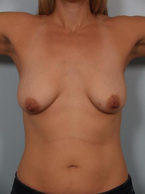 Breast Lift with Implants Gallery - Patient 1612653 - Image 5