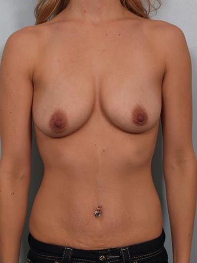 Breast Lift with Implants Gallery - Patient 1612655 - Image 1