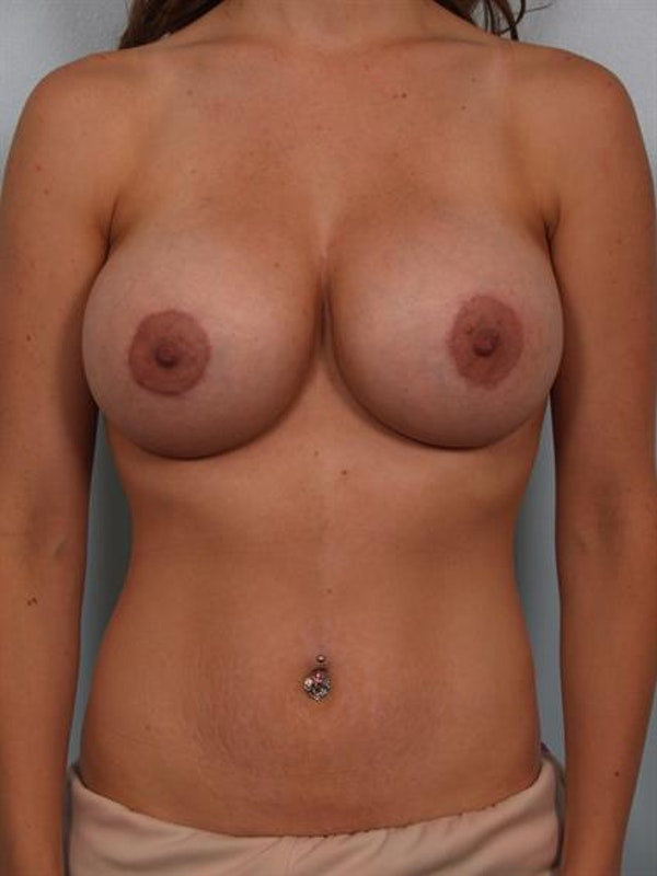 Breast Lift with Implants Gallery - Patient 1612655 - Image 2