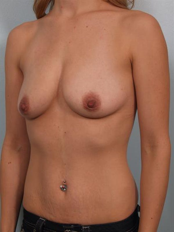 Breast Lift with Implants Gallery - Patient 1612655 - Image 3