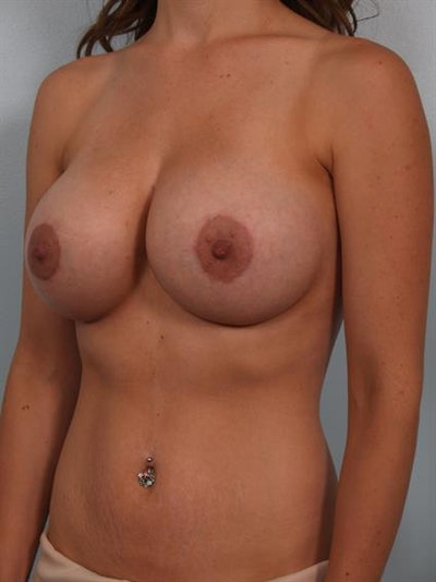 Breast Lift with Implants Gallery - Patient 1612655 - Image 4