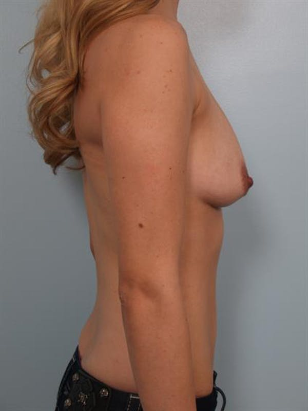 Breast Lift with Implants Gallery - Patient 1612655 - Image 5
