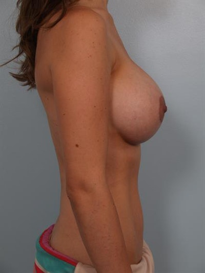 Breast Lift with Implants Gallery - Patient 1612655 - Image 6