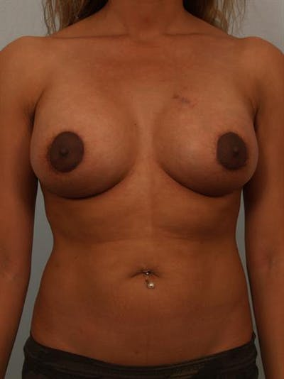 Breast Lift with Implants Gallery - Patient 1612656 - Image 2