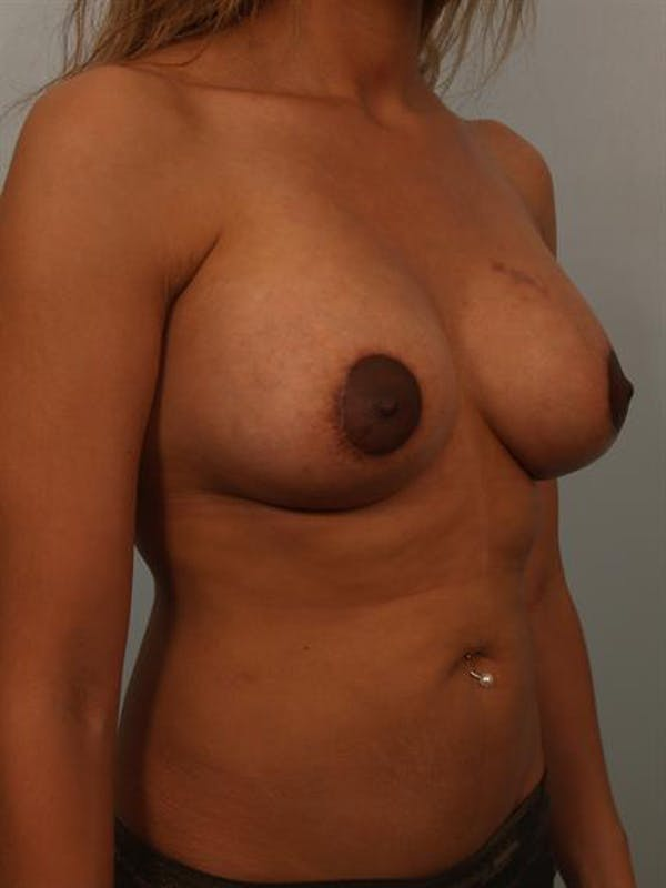 Breast Lift with Implants Gallery - Patient 1612656 - Image 4