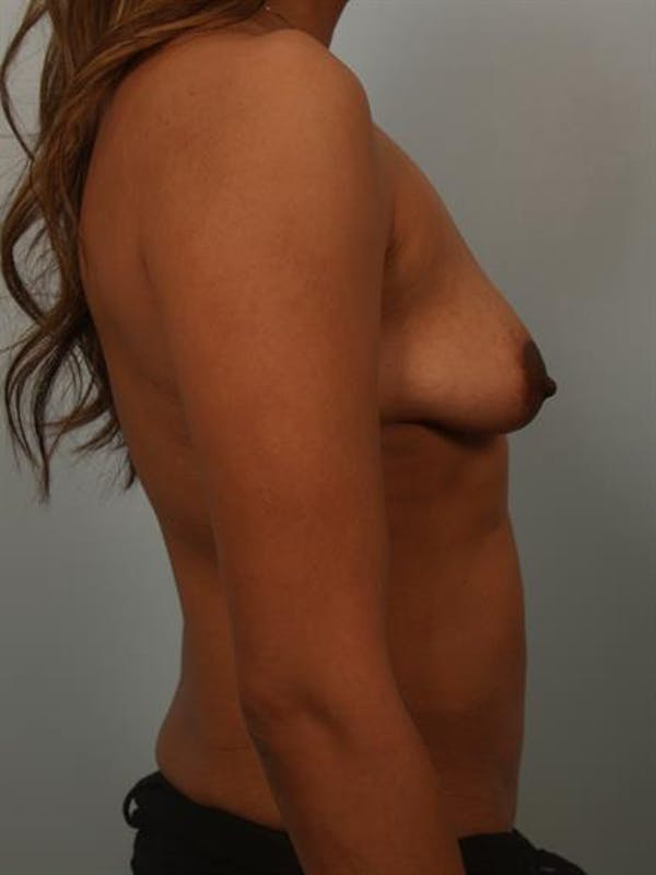Breast Lift with Implants Gallery - Patient 1612656 - Image 5