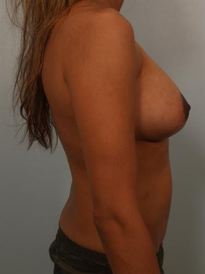 Breast Lift with Implants Gallery - Patient 1612656 - Image 6