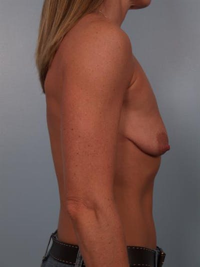 Breast Lift with Implants Gallery - Patient 1612657 - Image 1