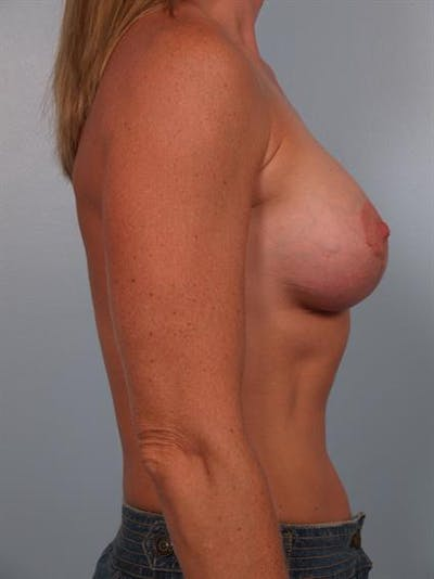 Breast Lift with Implants Gallery - Patient 1612657 - Image 2