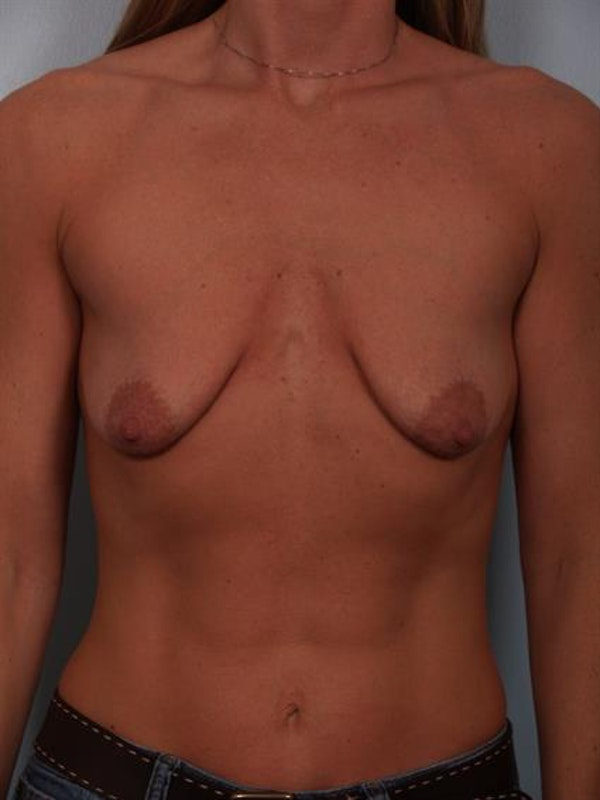 Breast Lift with Implants Gallery - Patient 1612657 - Image 3