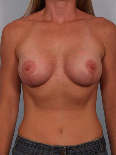 Breast Lift with Implants Gallery - Patient 1612657 - Image 4