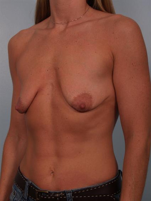 Breast Lift with Implants Gallery - Patient 1612657 - Image 5