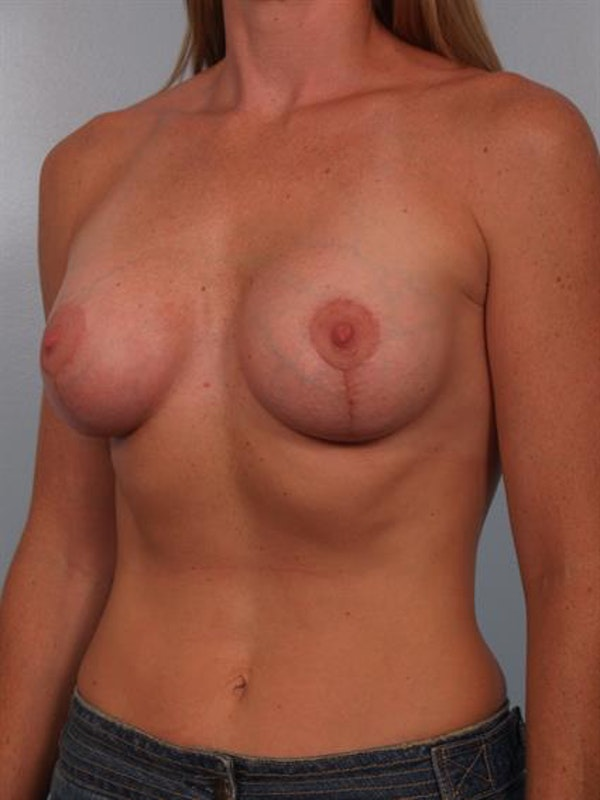 Breast Lift with Implants Gallery - Patient 1612657 - Image 6