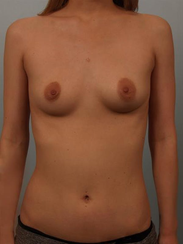 Breast Lift with Implants Gallery - Patient 1612659 - Image 1