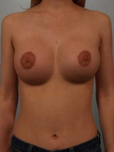 Breast Lift with Implants Gallery - Patient 1612659 - Image 2