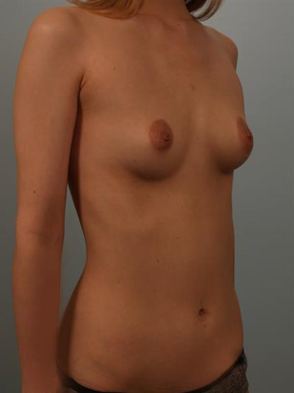 Breast Lift with Implants Gallery - Patient 1612659 - Image 3