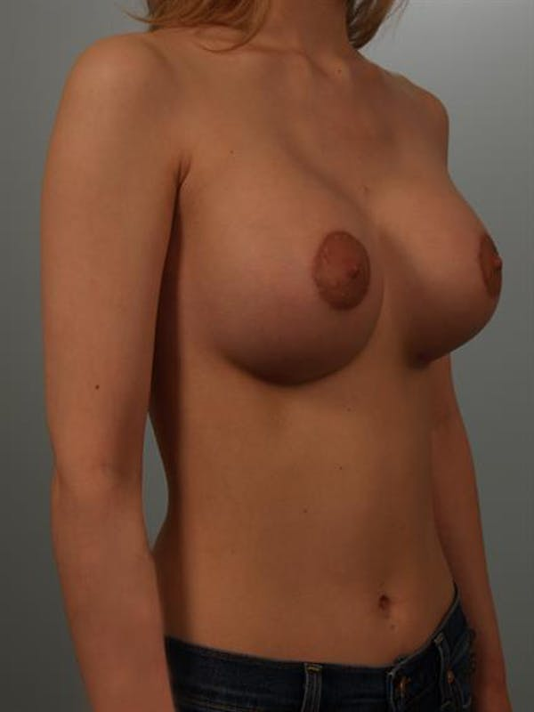 Breast Lift with Implants Gallery - Patient 1612659 - Image 4