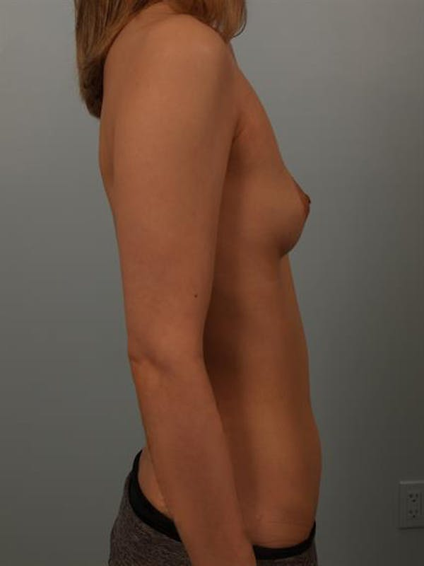 Breast Lift with Implants Gallery - Patient 1612659 - Image 5