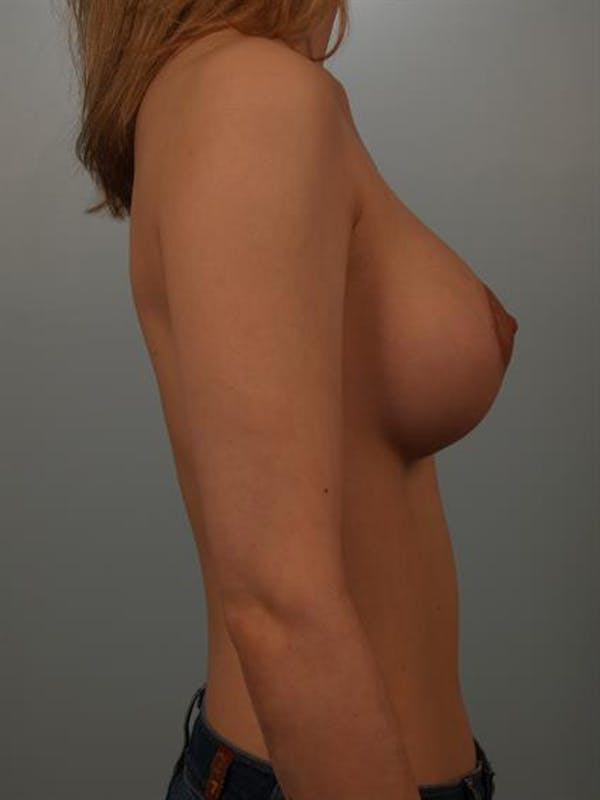 Breast Lift with Implants Gallery - Patient 1612659 - Image 6