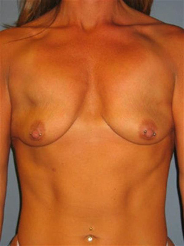 Breast Lift with Implants Gallery - Patient 1612660 - Image 1