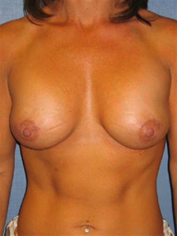 Breast Lift with Implants Gallery - Patient 1612660 - Image 2