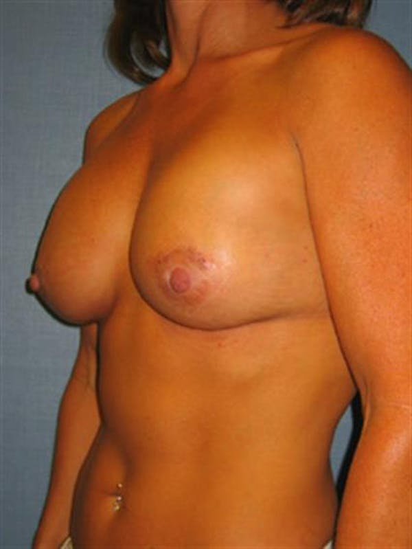 Breast Lift with Implants Gallery - Patient 1612660 - Image 4