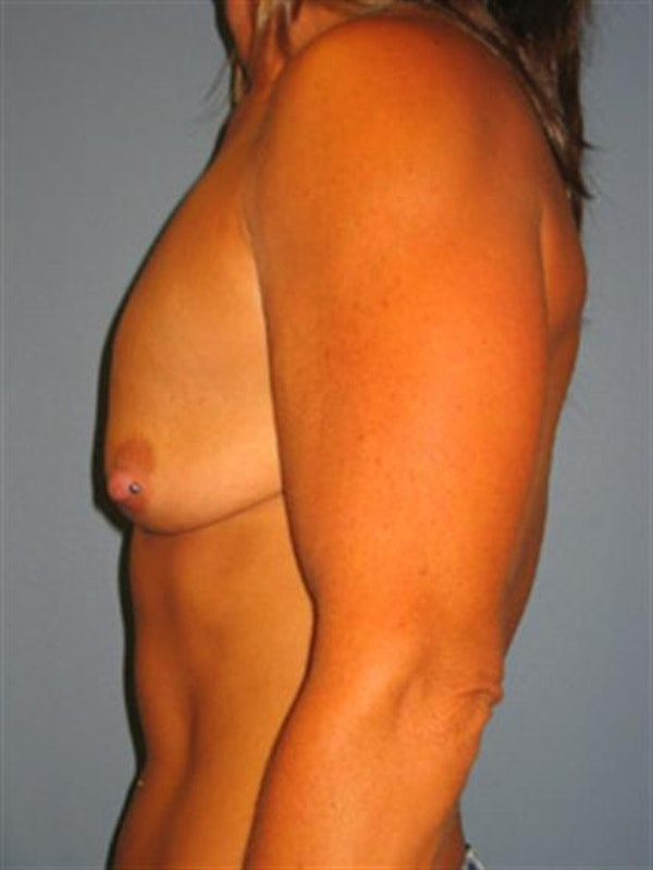 Breast Lift with Implants Gallery - Patient 1612660 - Image 5