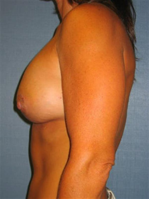 Breast Lift with Implants Gallery - Patient 1612660 - Image 6
