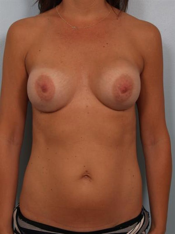 Breast Lift with Implants Gallery - Patient 1612661 - Image 1