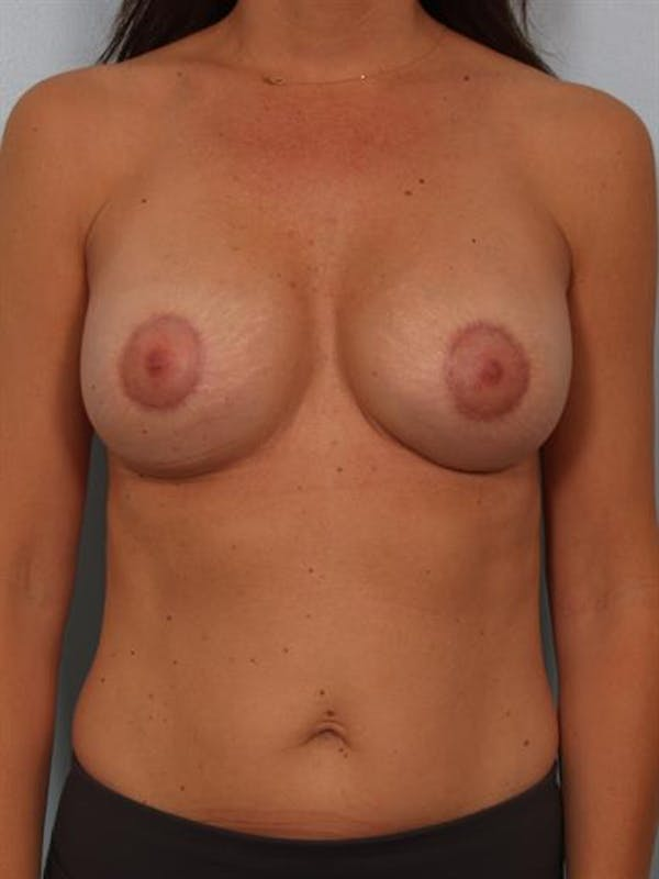 Breast Lift with Implants Gallery - Patient 1612661 - Image 2