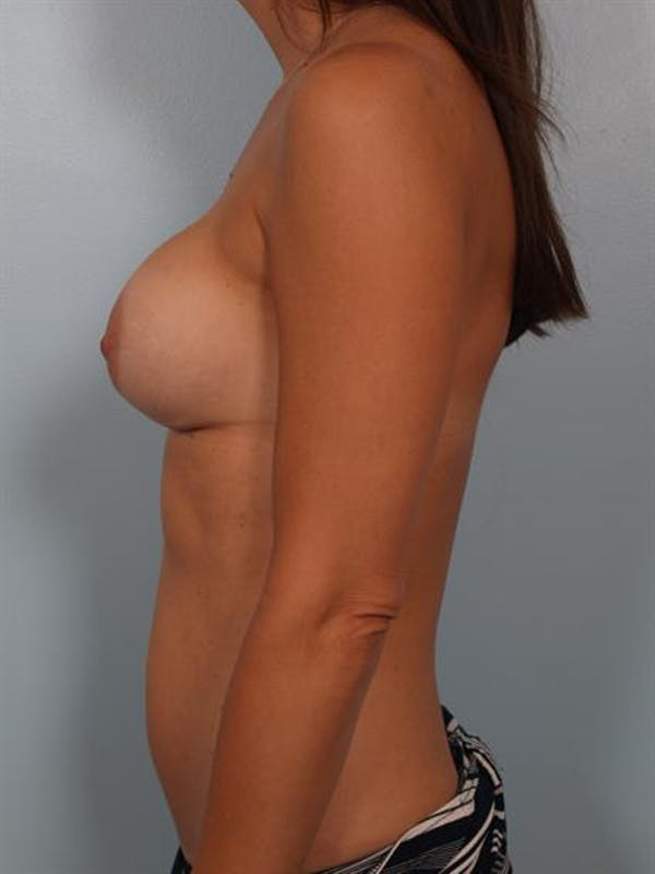 Breast Lift with Implants Gallery - Patient 1612661 - Image 3