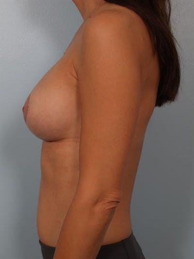 Breast Lift with Implants Gallery - Patient 1612661 - Image 4