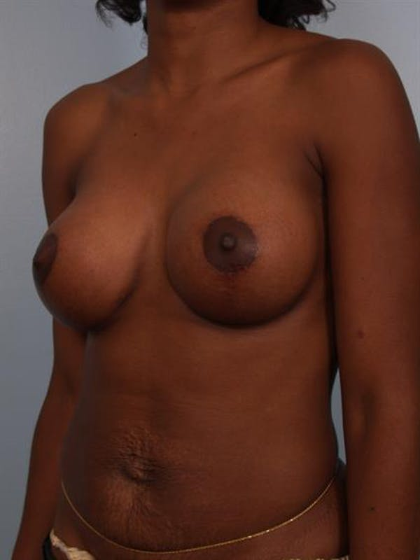Breast Lift with Implants Gallery - Patient 1612663 - Image 2