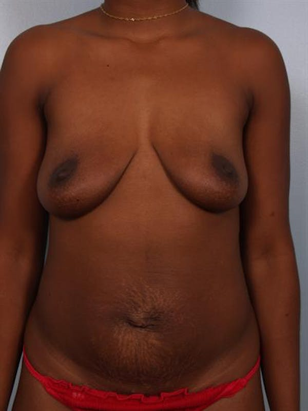 Breast Lift with Implants Gallery - Patient 1612663 - Image 3