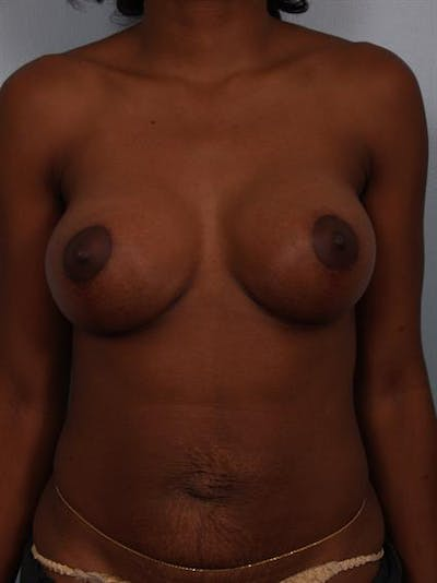 Breast Lift with Implants Gallery - Patient 1612663 - Image 4